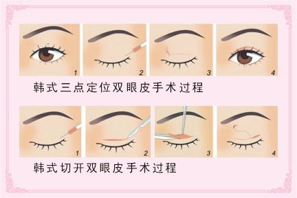 韩式双眼皮手术过程 图