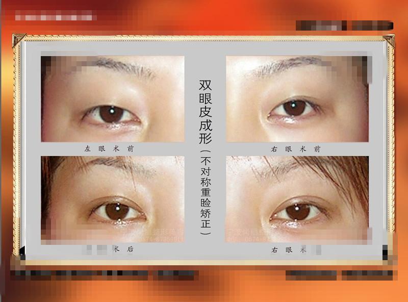 双眼皮手术恢复照片