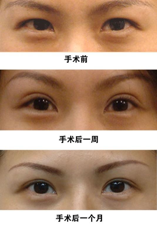 双眼皮手术前后对比图可以直观的看出双眼皮手术的效果,双眼皮手术是一种很常见的眼部整形的方法,其安全可靠,而且效果也是很好的,双眼皮手术前后对比图。 割双眼皮前后对比图可以看出,手术区内的解剖结构清晰,各项操作可准确地实行,能将多余的皮肤、眼轮匝肌和眶隔脂肪去除,形成永久而自然的重睑。缺点是手术较复杂,术后恢复较慢,另外要求手术大夫具备较高的手术技巧。它适合于任何年龄的患者,也适合于年龄较大,其上睑的皮肤松弛和眶隔脂肪过多的患者(包括单睑和重睑但皮肤松弛者)。 双眼皮手术前后对比图:  做双眼皮手术完全康复