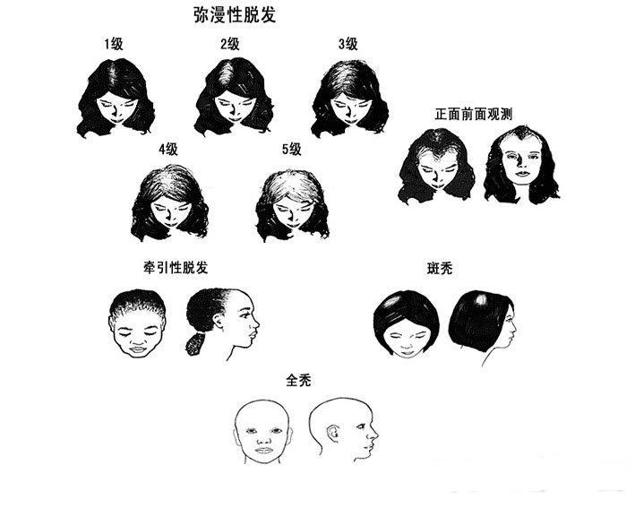女人脱发的原因有哪些? 搜疾病