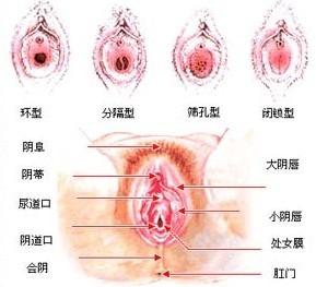 外阴白斑是女性外阴皮肤发生变性和色素改变的一组慢