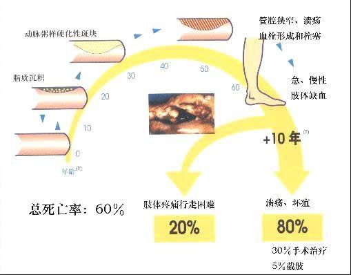 猪静脉输液部位图解